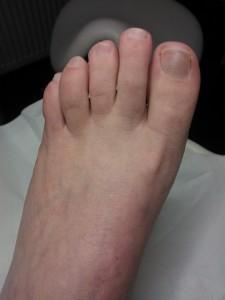 3 maanden na behandeling