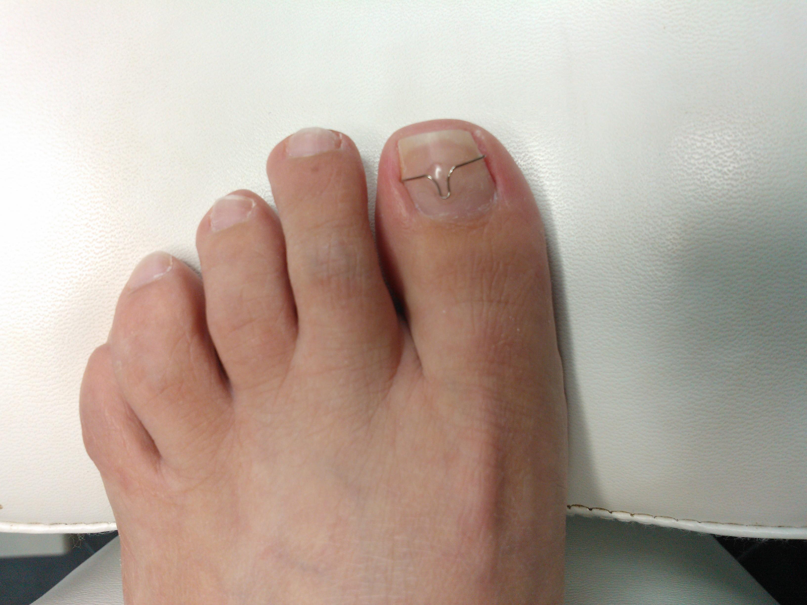 Behandeling met nagelbeugel